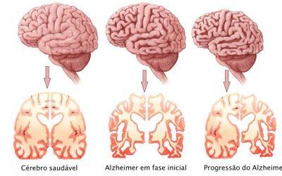 Saúde | Demência