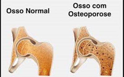 Saúde | Dia Mundial da Osteoporose
